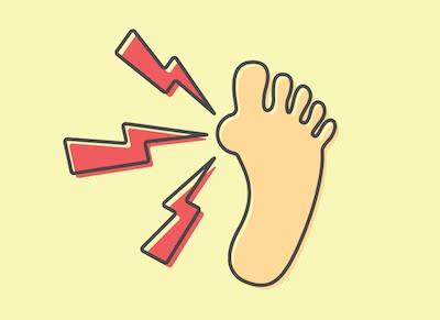 Sleep Apnea and Gout