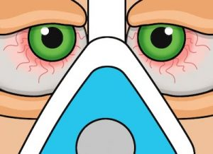 Remedies for Dry Eyes from CPAP